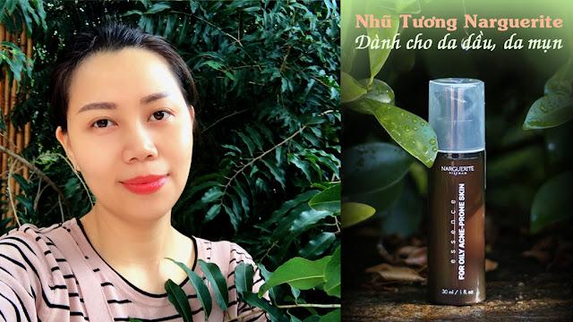 nhu-tuong-narguerite-danh-cho-da-dau-va-da-mun