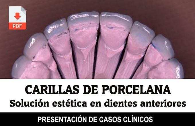 PDF: Carillas de Porcelana como solución estética en dientes anteriores: informe de doce casos