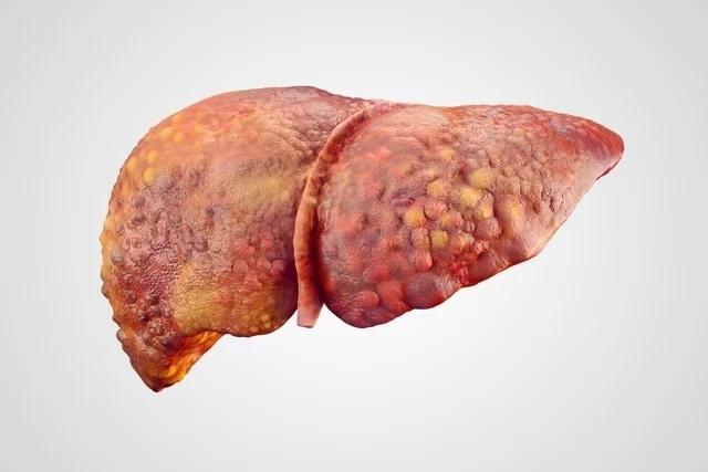 Veja os 8 principais sintomas de Gordura no Fígado e como tratar.