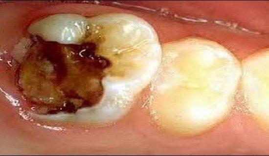 Ini penanganan untuk gigi berlubang seperti yang terlihat pada gambar.