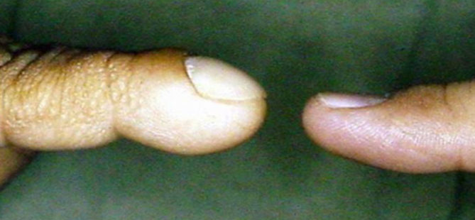 Finger Clubbing - Lung and Airway Disorders