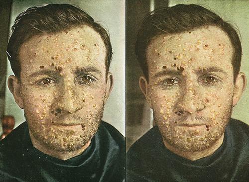 Intervensi Asuhan Keperawatan Pada Variola atau Smallpox
