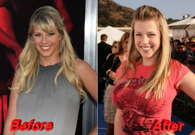 Full-House-Jodie-Sweetin-plastic-surgery-before-and-after-breast-augmentation
