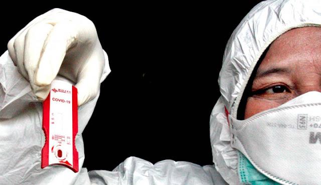 Indonesia Impor 1 Juta Alat Rapid Test Corona, Dokter Malah Bilang Alat Ini Bisa Berakibat Fatal