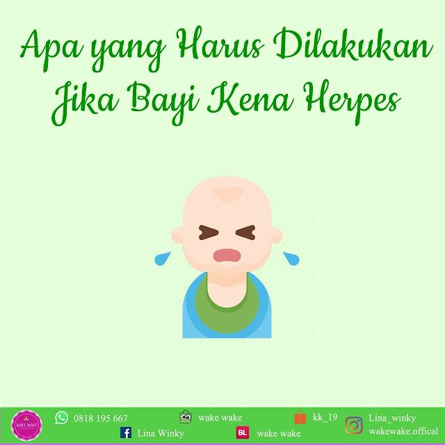 Apa yang Harus Dilakukan  Jika Bayi Kena Herpes