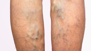 How to Prevent Varicose Veins During Pregnancy