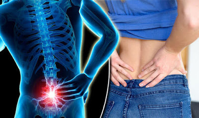 5 Top Secrets for Avoiding Back Pains
