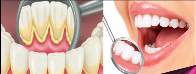 Inilah Cara Menghilangkan Dan Membersikan Karang Gigi