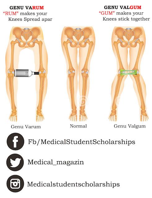 Medical_Mnemonics_Genu_Valgum_Vs_Genu_Varum