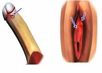 Racikan Obat Sipilis Tradisional untuk Pria dan Wanita