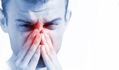 Pengobatan Radang Rongga Hidung Akibat Alergi
