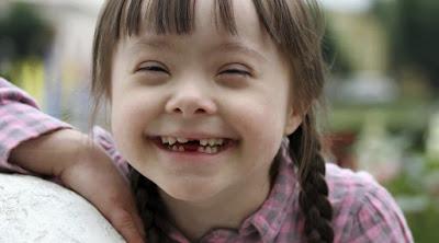 Mengenal 3 Macam Kelainan Trisomi Yang Dapat Terjadi Pada Anak