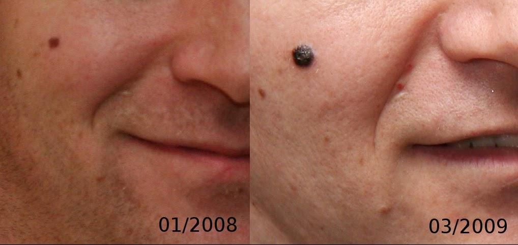kanker kulit Nodular melanoma