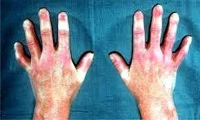 Baixas temperaturas influenciam diretamente no sistema vascular