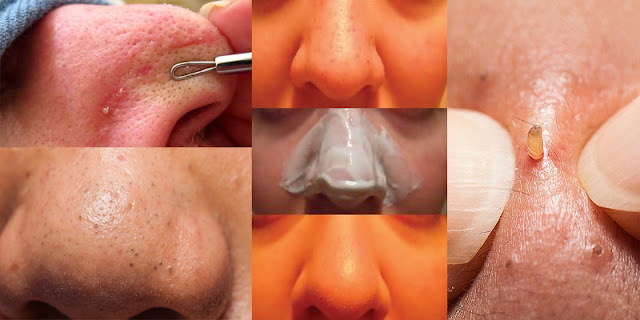 How To Get Rid Of Blackheads And Get Clean Nose Within 10 Minutes!