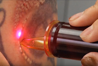 How to Remove a Tattoo without Laser at Home.  How To Remove A Tattoo At Home Without Hurting You. 