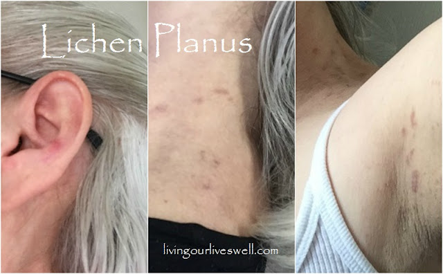 Lichen Planus On Skin