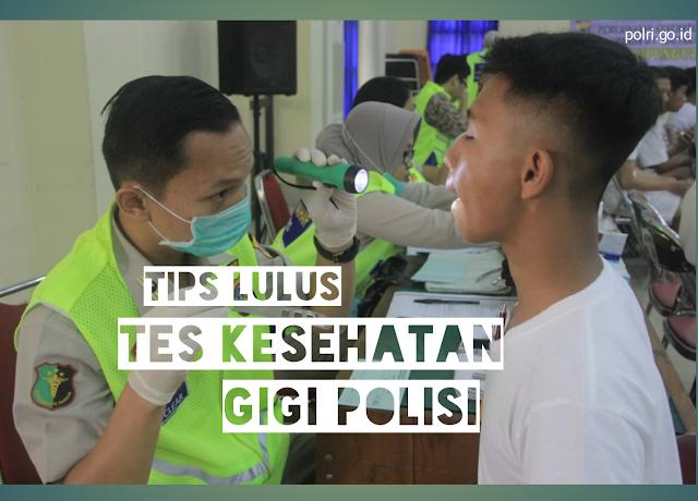 Tips 100% Lolos Tes Kesehatan Gigi Polisi / Akpol Terbaru