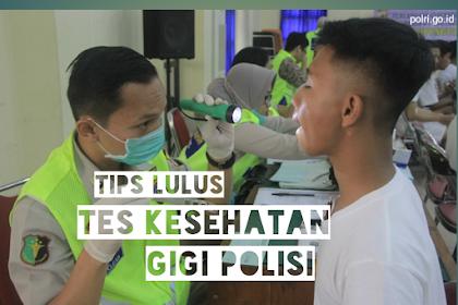 Bersiaplah, Ini 5 Tips Tes Kesehatan Gigi Polisi Dijamin Lolos
