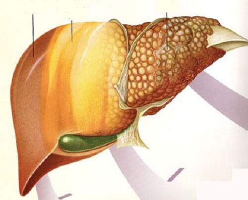 Conheças os 6 alimentos que combatem a gordura no fígado