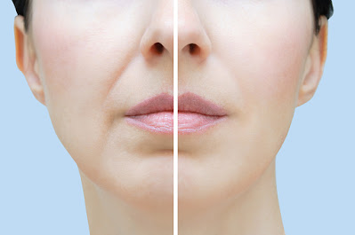 Ways to reduce wrinkles around lips