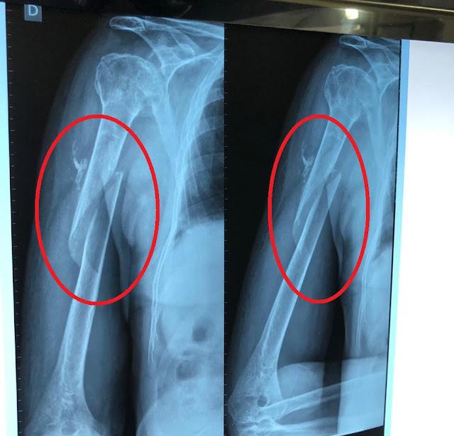 Idoso com braço quebrado é atendido no Socorrão e mandado de volta pra casa sem que a cirurgia tenha sido feita!!!