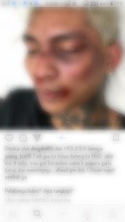 Young Lex Babak belur karena bertengkar dengan K-Popers