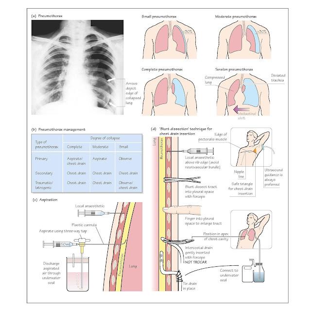 Pneumothorax, Pneumothorax classification, Primary spontaneous pneumothorax, Secondary pneumothorax, Traumatic (iatrogenic) pneumothorax, Tension pneumothorax, Blood gases, bronchopleural fistula, Air leaks, Pneumomediastinum,