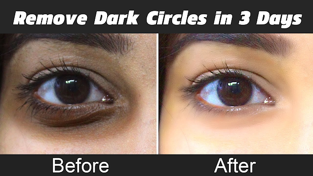 Home remedy for Dark Circles