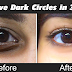How to Remove Dark Circles Naturally in 3 Days   Home Remedy For Under Eye Dark Circles.