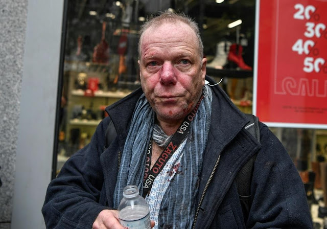 Deutsche Welle journalist Thomas Jacoby beaten by extremists in front of Greece's Parliament