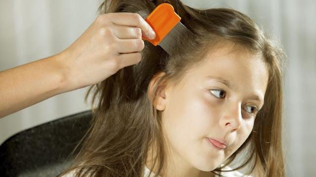 Cara Menghilangkan Kutu Rambut Paling Efektif Dan Aman