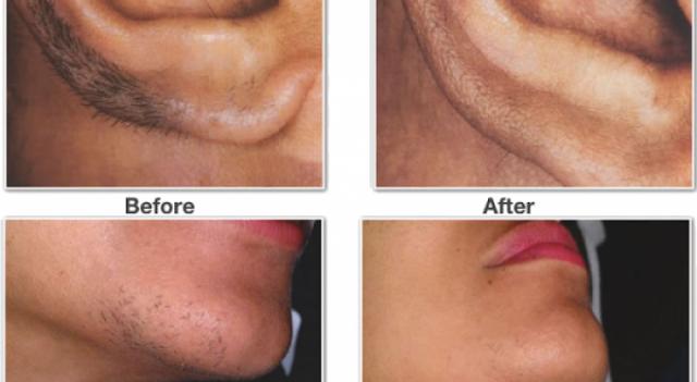 إليكم هذه الحيلة الطبيعية والتي ستخلصك من شعر الوجه الزائد هذا هو الحل النهائي أخيراً