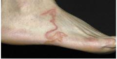 Paciente pensa estar com varizes no pé e fica em choque ao descobrir que se tratava de enorme