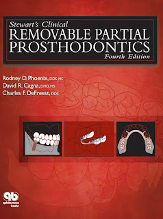 Stewart's Clinical Removable Partial Prosthodontics 4th Edition