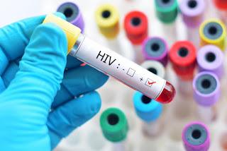 تشخيص مرض فيروس نقص المناعة المكتسب (الايدز)