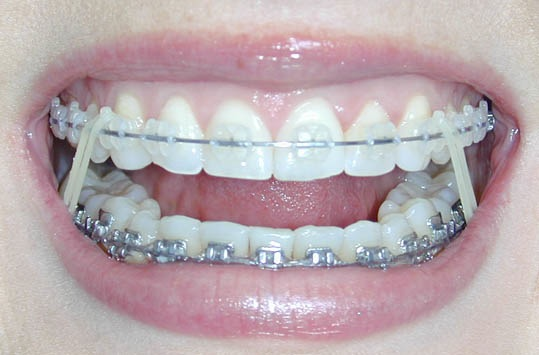 Bales Orthodontics How Do Rubber Bands Work With Braces