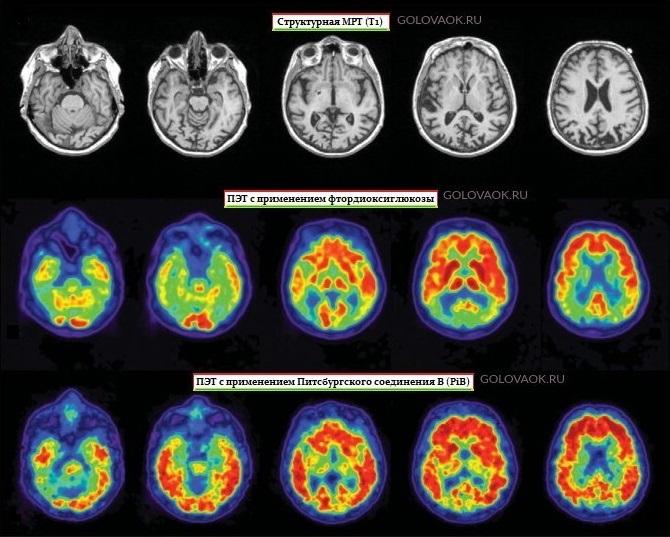 диагностика кортикальной церебральной атрофии