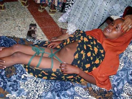 Após ser mutilada menina descansa. Mutilação genital, submissão feminina. Excisão