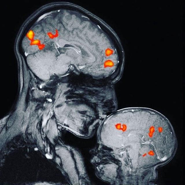 《分享》這是世界上第一個顯示母親和孩子的關係的磁共振影象