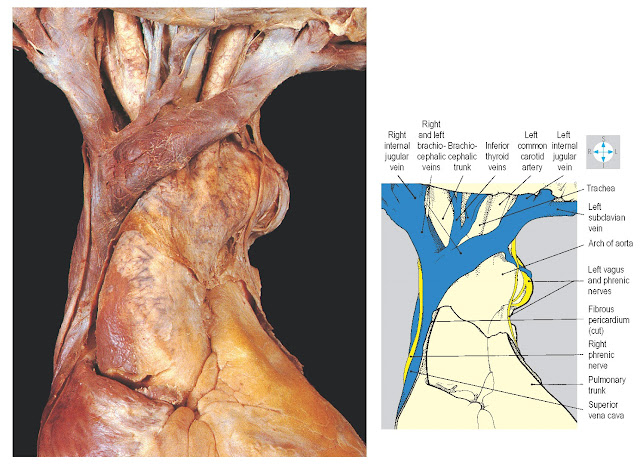 Relationships of the brachiocephalic veins to the great arteries arising from the aortic arch.