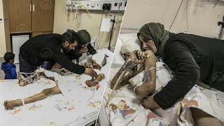 """تركيا..""""لم شمل"""" العائلة يحقق حلم طفل سوري (فيديو)"""