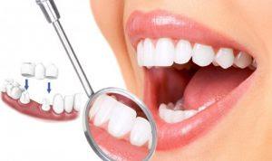 Răng sứ Cercon HT có giá bao nhiêu?