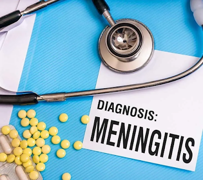 Meningitis treatment and complication