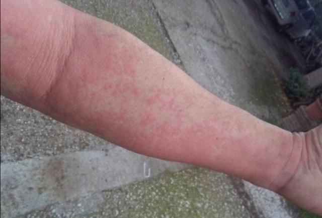 Μέλισσα και αλλεργικό σοκ μερικές φορές πάνε μαζί: Γι αυτό προσοχή!!!