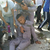 Tres policias resultan heridos al chocar entre ellos mismos
