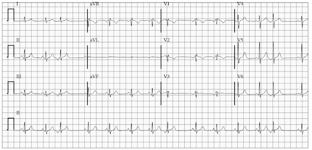 ECG findings in a patient with COPD