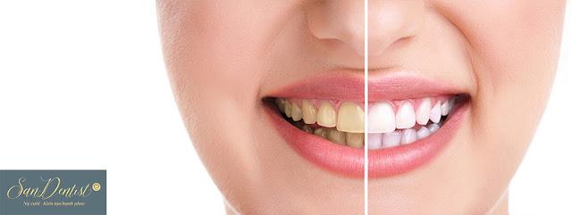 Phủ răng sứ khắc phục hiệu quả các khuyết điểm răng xấu