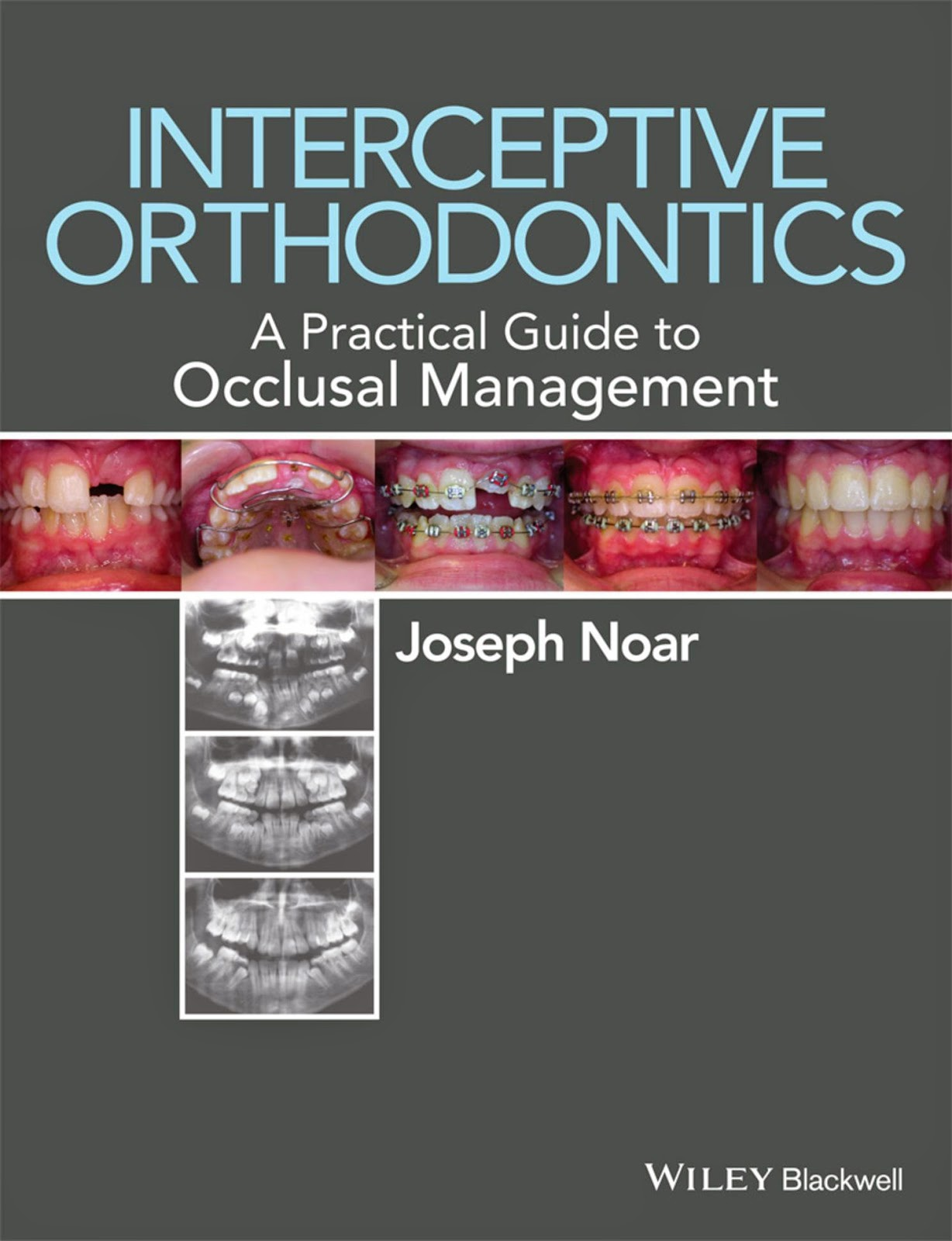 Interceptive Orthodontics ... A Practical Guide to Occlusal Management - Joseph Noar - 1st.ed. © 2014.PDF