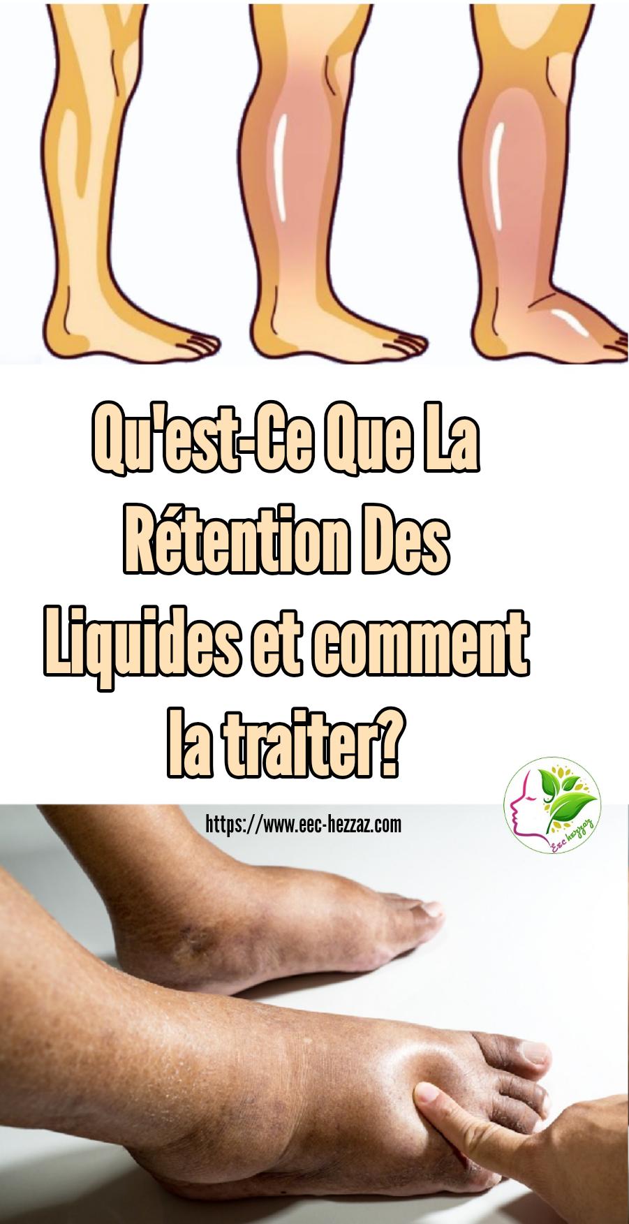 Qu'est-Ce Que La Rétention Des Liquides et comment la traiter?